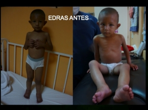 Edras Before